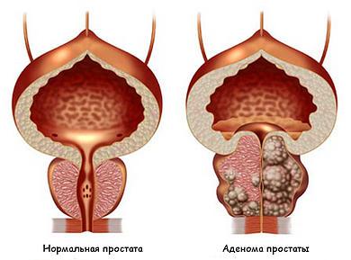 Вапоризация аденомы простаты