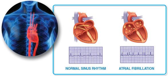 Что такое мерцающая аритмия сердца и как ее лечить