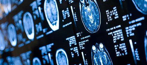 Лечение неврологических болезней