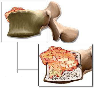 Диагностика рака костей