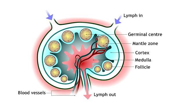 Диагностика лимфомы