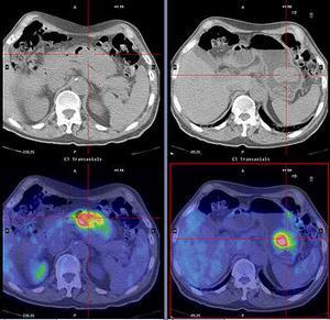 Диагностика рака желудка в Израиле