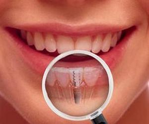 Имплантация зубов в Израиле — быстро, эффективно, надежно