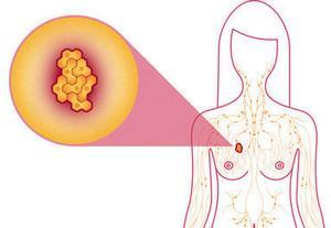 Лечение рака молочной железы в Израиле — новые тенденции в терапии новообразований груди