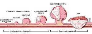 Диагностика рака прямой кишки в Израиле
