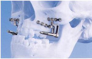 Челюстно-лицевая хирургия в Израиле – возможности и преимущества
