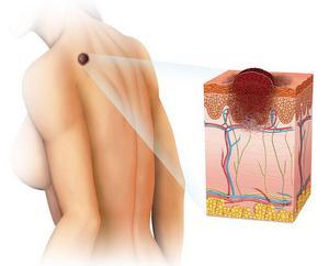 Лечение рака кожи в Израиле — полный спектр современных подходов