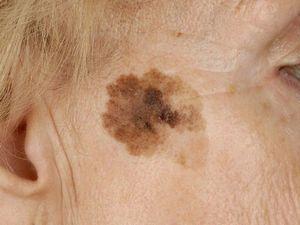 Симптомы и диагностика базально-клеточного рака кожи в Израиле