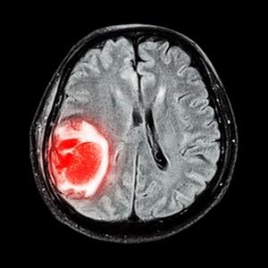 Лечение рака мозга в Израиле: современные методики, наилучший результат