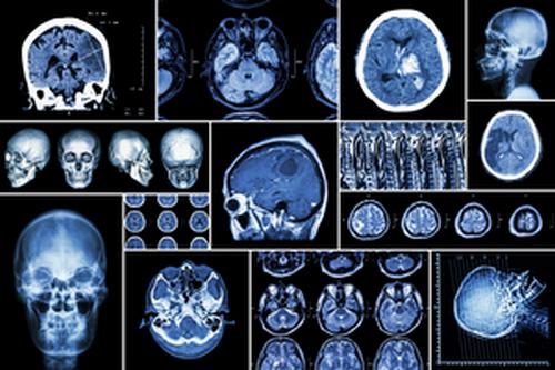 Неврология в Израиле – точная диагностика и новаторские методы лечения