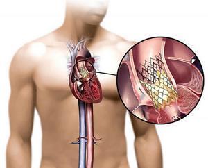Диагностика в кардиохирургии