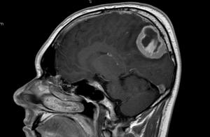 Диагностика менингиомы в Израиле