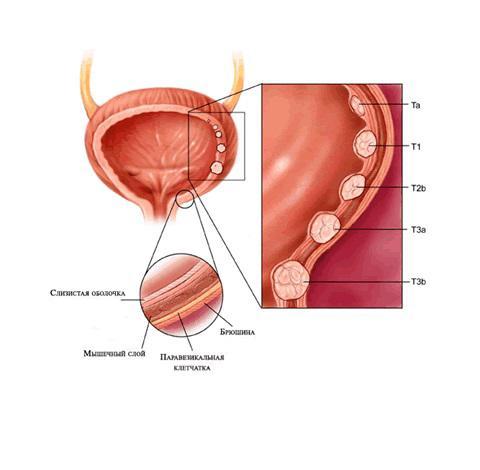 Диагностика рака мочевого пузыря