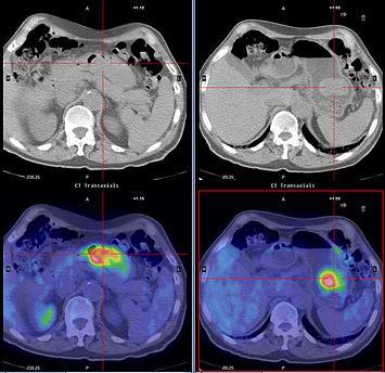 Лучевая терапия рака желудка