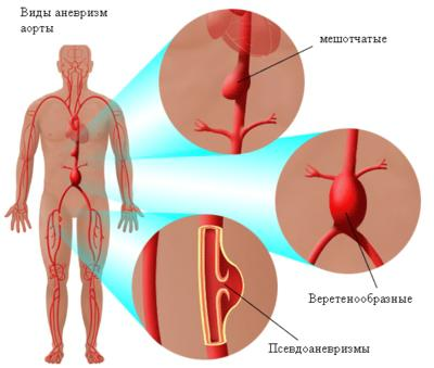 Диагностика аневризмы