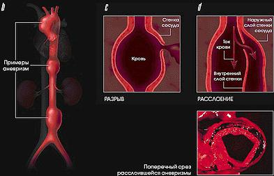 Лечение аневризмы