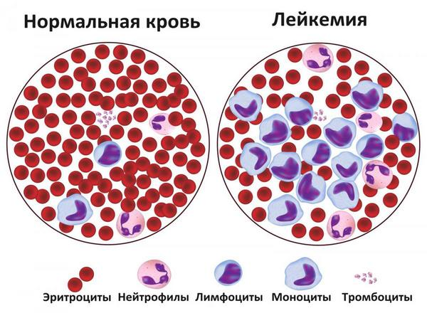Диагностика лейкемии у детей
