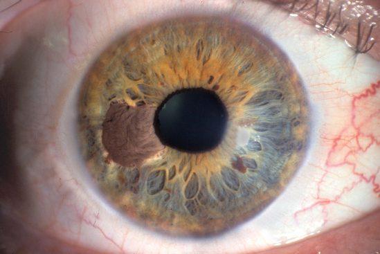 Меланома глаза лечение