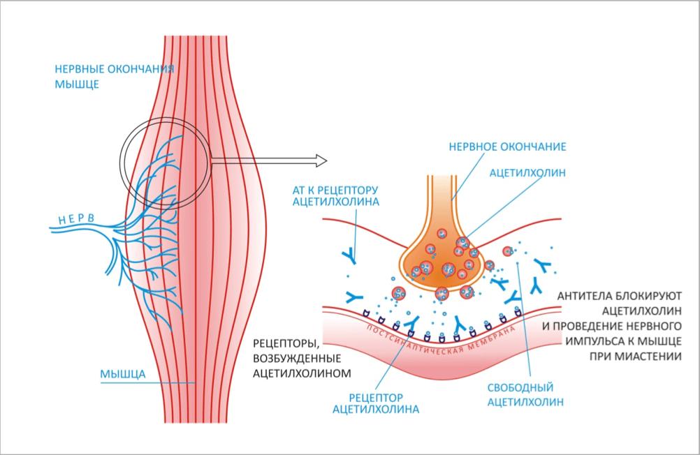Лечение миастении в клинике Ихилов Сураски
