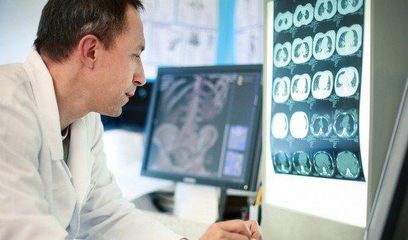 Лечение нейробластомы у детей