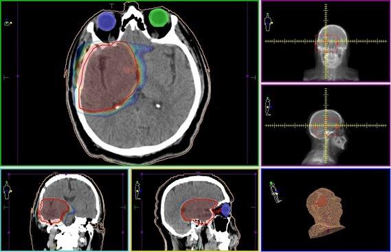 Лучевая терапия рака мозга