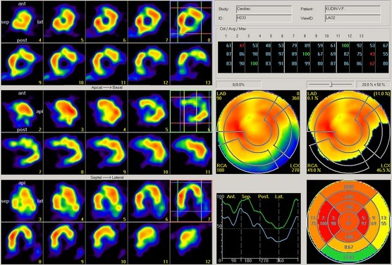 Радиоактивная диагностика