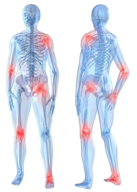 лечение артрита суставов клиника