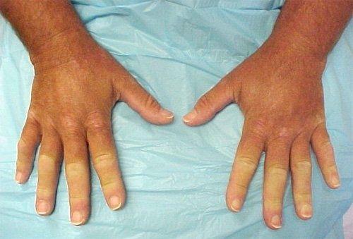 Лечение склеродермии